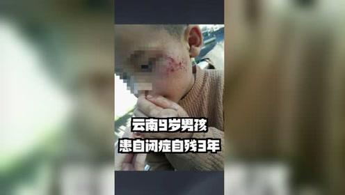 陈迪说:云南9岁男孩自残3年 普通家庭治得起自闭症吗?