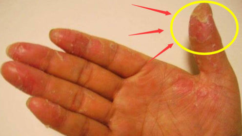 """手指""""脱皮""""是什么原因?可能是身体发出的""""求救""""信号,最好别大意"""
