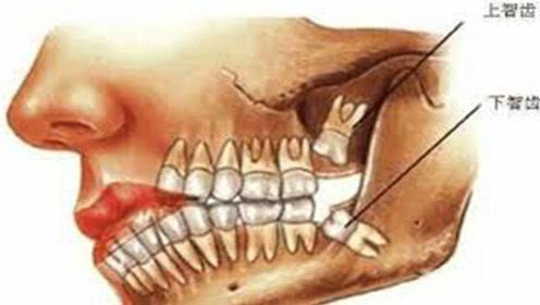 智齿的消亡,大脑的萎缩!人类时时刻刻处于进化之中!