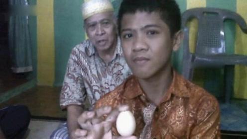"""14岁男孩定期""""下蛋"""" 两年内产下20个鸡蛋"""