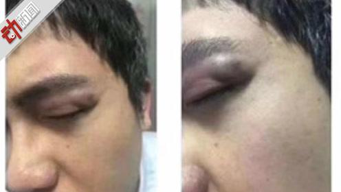 兰州一医院发生伤医事件 犯罪嫌疑人被行拘10日