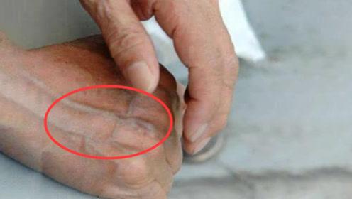 不论男女,一旦手指和手掌出现这东西,就是肝癌的前兆