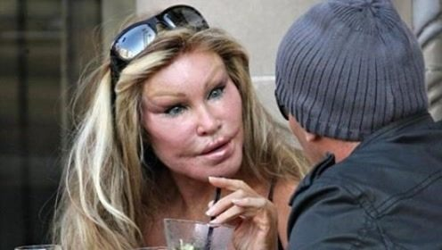 富婆花400万整容,丈夫看第一眼后要离婚,愿支付25亿分手费