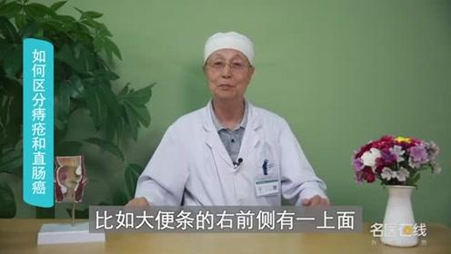 如何区分痔疮和直肠癌