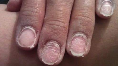 这种卸美甲方式就算石头都能磨穿,怪不得女人做美甲指甲会变薄!