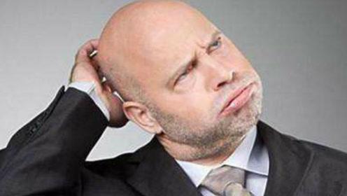 脱发也有好处?可以让你免于疾病的困扰