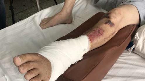 """小伙车祸后险截肢,右臂在腹部""""寄养""""3周后竟保住了"""