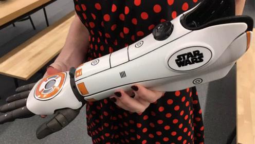 用3D打印的仿生手臂,可以随着人一起生长,一个能用一辈子