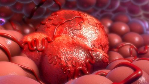 """提醒:宫颈癌容易""""看上""""3类女性,女性要有""""防病之心"""""""