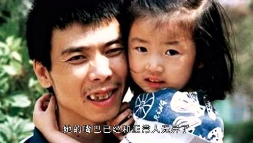 同是兔唇,王菲女儿被吐槽像老太太,冯小刚女儿却美成这样?