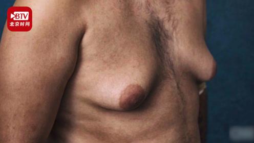 美国男子乳房堪比同龄女性只因吃了这种药!生产商强生判赔80亿!
