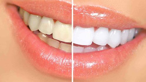牙黄别再花钱洗牙了,教你几个天然小妙招,牙黄牙渍就能清除