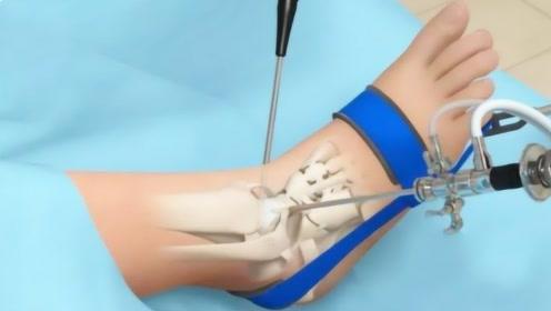 手脚筋伤了的人,医生是怎么将其重新接起来的?3D动画还原过程