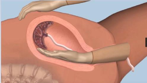 产后手剥胎盘到底有多疼?3D动画模拟全过程,看完心疼女人!