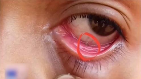眼里容不下沙子?印度女孩眼睛里10天揉出60死蚂蚁,无解!