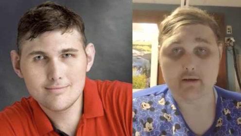美国2.34米最高男子将做心脏手术,住院后长严重黑眼圈:床太小