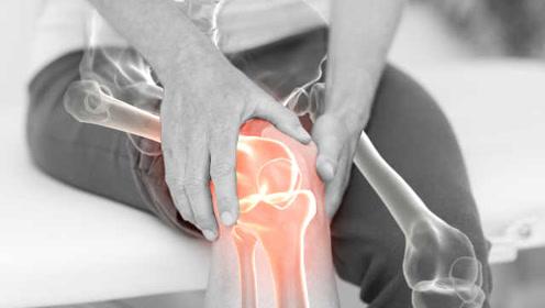新研究:骨关节炎常见疗法或有安全问题