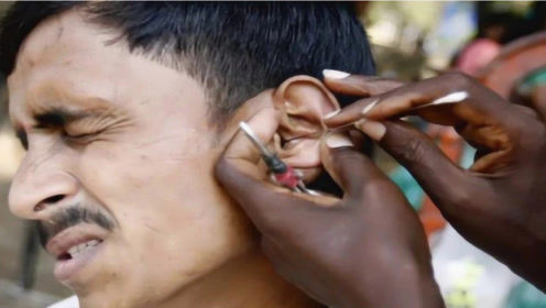 """印度街头惊现""""掏耳人"""",技术有多厉害?一勺子下去挖的怀疑人生!"""