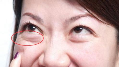 眼袋大很显老?教你2个小妙招,眼袋黑眼圈轻松去除,皮肤光滑白皙
