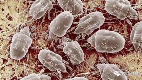 生活百科:螨虫的克星是什么?