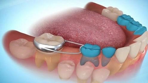 蛀牙真是被虫子吃光的吗?看完3D模拟过程,要按时刷牙了