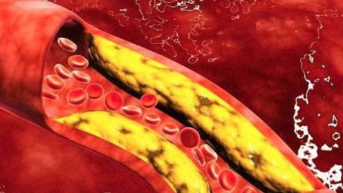 """血管一堵百病生,3种食物是血管""""清洁工"""",常吃血栓不找你"""