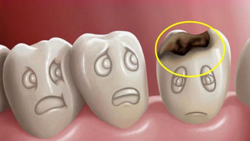 蛀牙真的是被虫子吃空的吗?专家说出实情,看完长知识了!