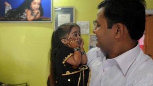 印度女孩从小被父母遗弃,20岁身高仅62厘米,如今成好莱坞明星