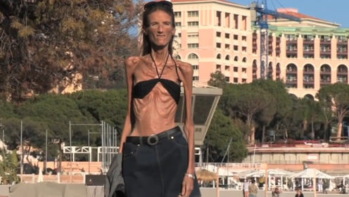 """女子因减肥过度,每天只喝水不吃饭,如今瘦成""""骨架""""!"""