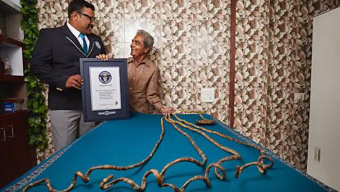 世界上指甲最长的人,16岁留到82岁,全长竟超过9米
