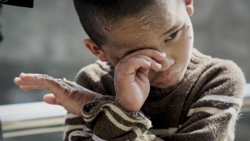 云南9岁男童患怪病疯狂击打头部,家人无奈用绳捆住双手防自残