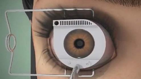 曾经用激光治疗近视的人,现在后悔了吗?