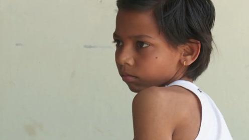 """印度男孩天生长着""""尾巴"""",被人奉为神灵,想去医院却被村民阻挠!"""