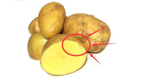 """吃土豆时,最好别碰""""3种食物"""",可能会导致食物中毒,别再犯傻了"""