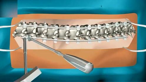 动画演示脊柱侧弯手术全过程 看完吓得我立马坐直了