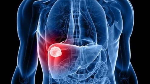 """不论男女,身体出现这3个症状,十有八九是""""肝硬化"""",尽快去医院检查"""