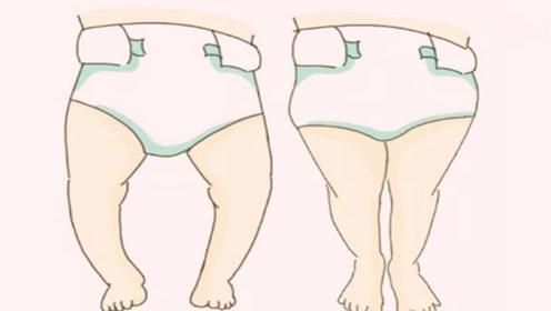 宝宝缺钙会导致O型腿?身体缺钙有什么表现,还好发现及时!