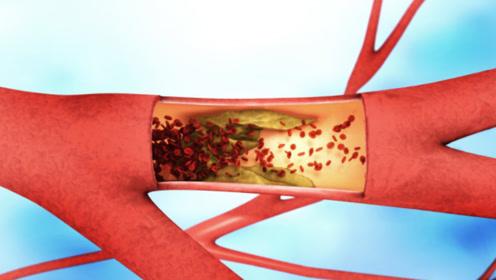 这几样食物被誉为头号降压药,每天吃一点,高血压不攻自破