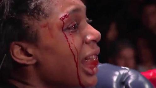 美国拳王被轻易击败,暴揍到眉骨流血,中国姑娘你厉害了!