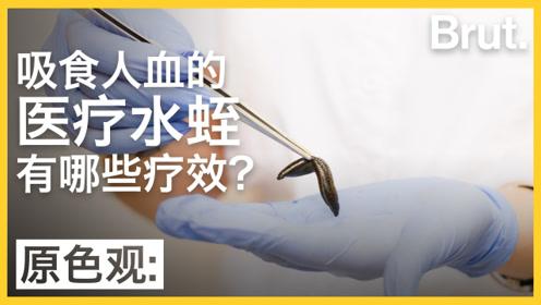 吸食人血的医疗水蛭有哪些疗效?