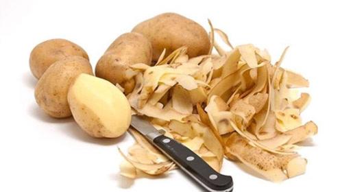 白吃20年土豆才知道,土豆皮的神奇用途简直是万能,早学不吃亏