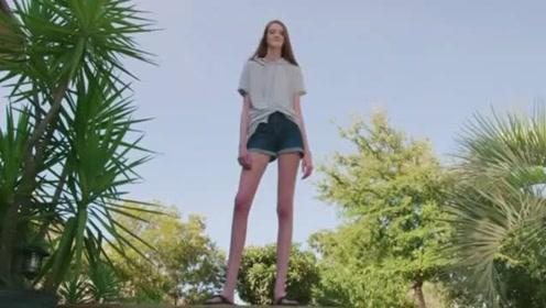 """比吉尼斯纪录还长 16岁女生""""逆天长腿""""135厘米"""