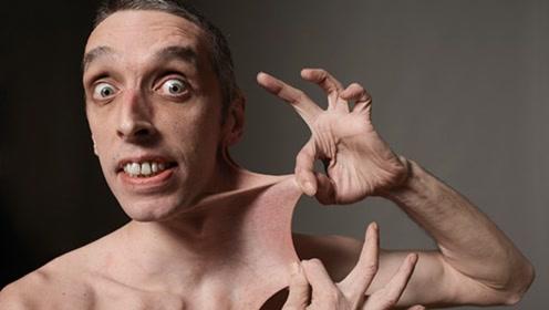 """现实版的""""路飞"""",皮肤弹性最大的男人,皮肤可随意拉伸16厘米"""