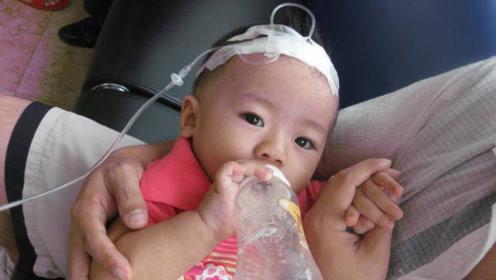 小孩子输液时,为什么针头要扎头上?不仅没害处还有这么多好处