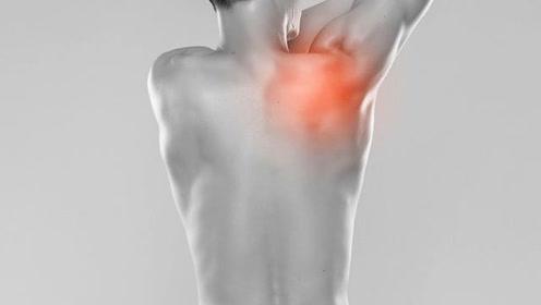 关节炎疼痛如何缓解?医生:4种方式改善,如果很严重还是要手术