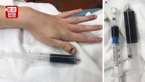 美国女子牙疼服止痛药后皮肤和血液竟变蓝!医生:再晚点就危险了