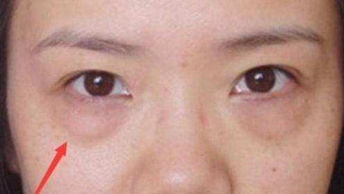 有了眼袋老10岁,每晚睡前用它抹一抹,眼袋黑眼圈轻松去除