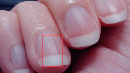 """为什么指甲盖上会出现""""竖纹""""?其实是这4个原因,看完别忽视了"""
