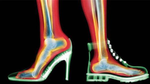 穿高跟鞋和平底鞋的女人,10年后会有何不同?答案颠覆想象