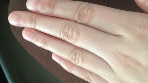 年轻时掰手指咔、咔响,老了之后容易得关节炎?真的会这样吗?